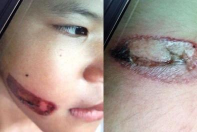 Khởi tố vụ án bé gái 7 tuổi bị dí sắt nung vào người