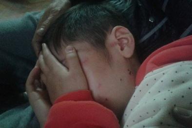 Vụ bé trai 10 tuổi bị bố đẻ và mẹ kế bạo hành: Vì sao mẹ đẻ không hề biết?