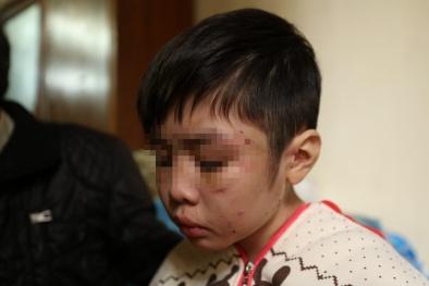 Vụ bé trai bị bố đẻ và mẹ kế bạo hành: Hai năm không được đi học, nhà trường nói gì?