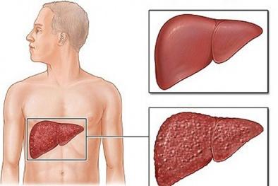 Những loại thuốc uống gây tổn hại gan trầm trọng cần biết để tránh