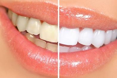 Không cần tẩy trắng vẫn có hàm răng sáng bóng với 5 thực phẩm này