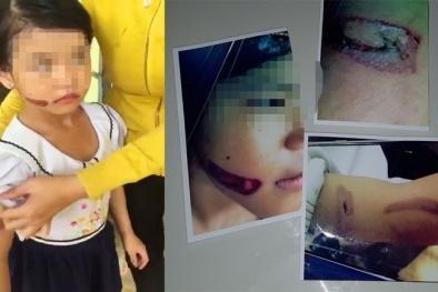 Bé gái ở Kiên Giang nghi bị dí sắt nóng vào người hiện đang ở đâu?