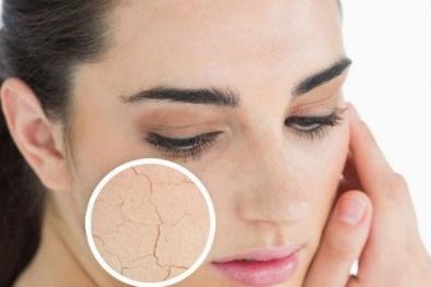Cách ngăn ngừa và chăm sóc da nhạy cảm