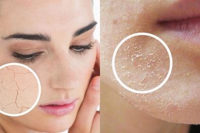 Những sai lầm có thể 'hủy hoại' làn da vào mùa đông
