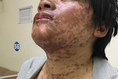 Tự mua thuốc trị sốt, đau đầu uống, cô gái bị biến dạng khuôn mặt