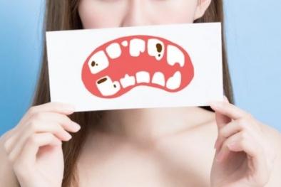 Sức khỏe răng miệng kém làm tăng nguy cơ tử vong
