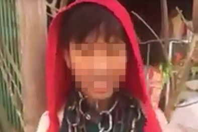 Thực hư thông tin bé trai bị xích quấn quanh cổ ở Thanh Hóa