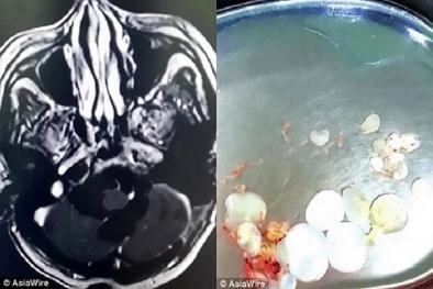 Kinh hoàng người đàn ông ăn thịt sống bị sán làm tổ trong não