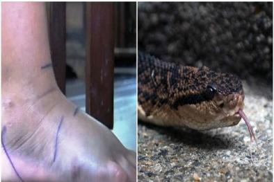 Bỏ bệnh viện về thầy lang chữa rắn cắn, thanh niên phải cắt bỏ chân
