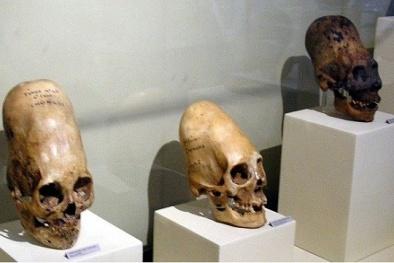 Bí ẩn những hộp sọ siêu dài nghi là của người ngoài hành tinh