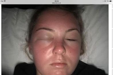 Từ việc cô gái người Anh bị 'ngộ độc nắng', đi tắm nắng cần lưu ý