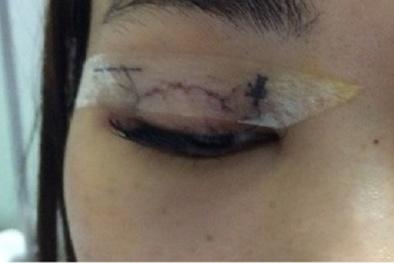 Hà Nội: Đi phẫu thuật nhấn mí làm đẹp, cô gái bị kim chui vào mắt