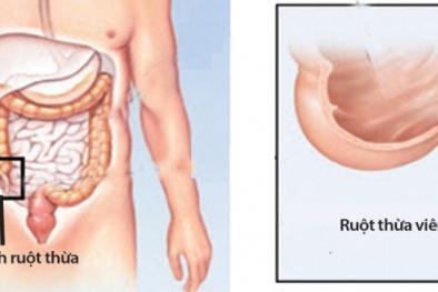 Viêm ruột thừa và những triệu chứng không thể bỏ qua