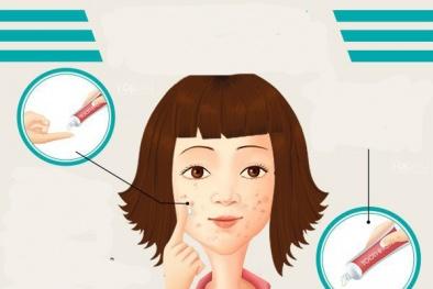Dùng kem đánh răng trị mụn chỉ khiến tình trạng thêm nghiêm trọng