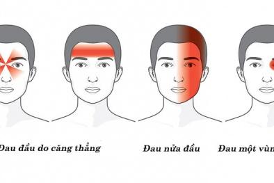 Những 'thủ phạm' gây đau đầu cần biết để tránh