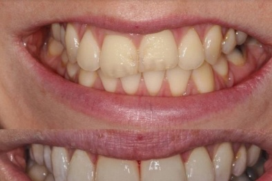 Kem đánh răng làm trắng có thể gây 'cụt răng'