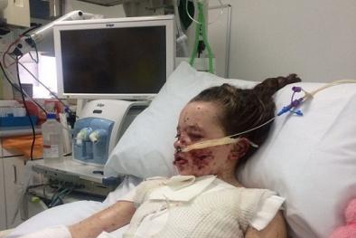 Sau khi uống thuốc giảm đau, bé 10 tuổi bị bỏng đến 65% cơ thể và mất trí