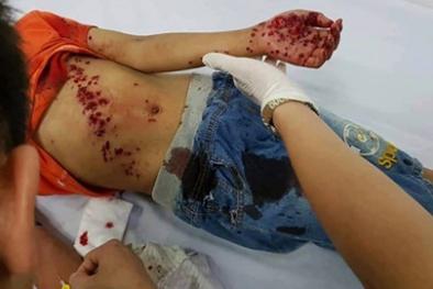 Nghệ An: Đồ chơi bất ngờ phát nổ khiến bé trai 8 tuổi bị thương nặng