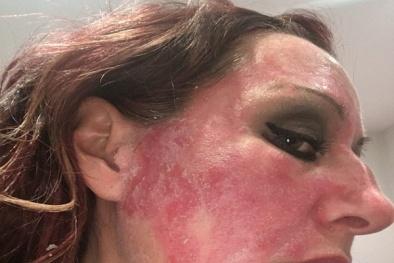 Thói quen sử dụng kem trị vảy nến nhiều năm khiến làn da như bị tạt axit