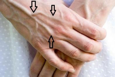 Nổi gân xanh - có thể là dấu hiệu bệnh nguy hiểm