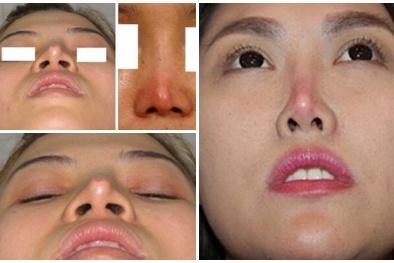 Những nguy hại từ việc nâng mũi bằng sụn tự thân
