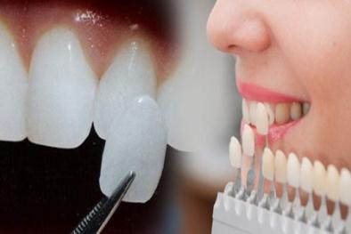 Trào lưu gắn răng khểnh làm đẹp: Coi chừng rước họa vào thân!