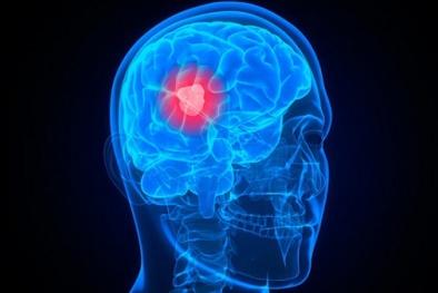 Ung thư não: 8 dấu hiệu nhận biết sớm nhất không thể bỏ qua