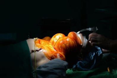 Bác sĩ Bệnh viện Nội tiết Trung ương cảnh báo bệnh u bướu tuyến giáp
