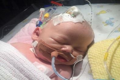 Bé gái 14 ngày tuổi tử vong vì nhiễm virus herpes simplex từ một nụ hôn của người lớn