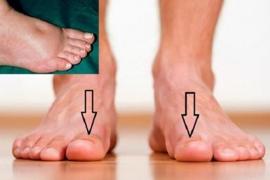 Cần đi khám thận ngay lập tức nếu bàn chân xuất hiện dấu hiệu lạ