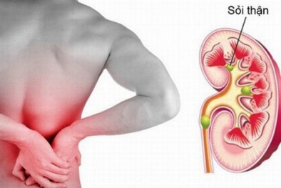 Bệnh sỏi thận - Điều trị sai có thể gây vỡ thận, tử vong cao