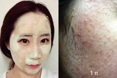 Dùng sữa rửa mặt sai cách có thể khiến da mặt 'biến dạng'