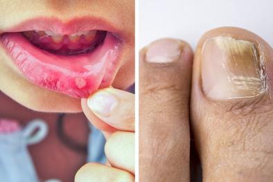8 tác dụng phụ của thuốc kháng sinh bác sĩ hiếm khi cho biết