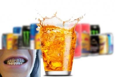 Răng bị mục nát do uống nước tăng lực trong nhiều ngày liền