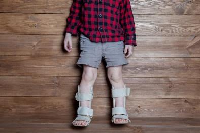 Bệnh còi xương: Cứ 3 trẻ lại có 1 trẻ bị còi xương