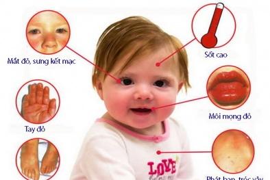 Trẻ bị sốt, ho đừng coi thường bởi có thể là dấu hiệu của bệnh lạ nguy hiểm Kawasaki