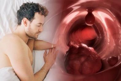Cảnh báo nguy hiểm: Đổ mồ hôi ban đêm có thể là dấu hiệu của bệnh ung thư