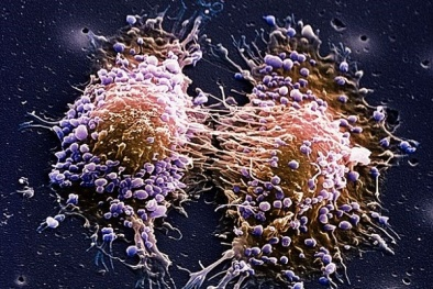 Phương pháp điều trị mới có thể khiến bệnh ung thư 'ngủ quên'