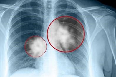 Cô gái trẻ qua đời sau 5 ngày phát hiện ung thư: Những dấu hiệu không thể chủ quan