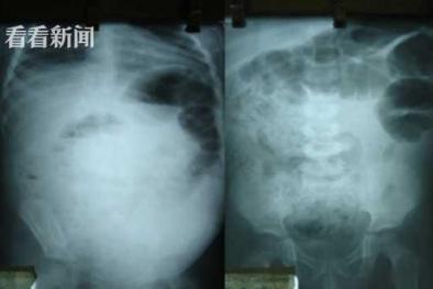 Ổ giun khổng lồ trong bụng bé trai 4 tuổi: Dấu hiệu nhiễm giun thường bị cha mẹ bỏ qua