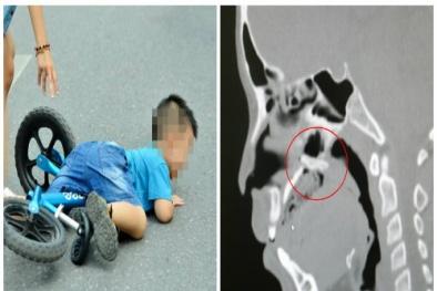 Bé trai thủng vòm họng do ngã xe đạp, những sai lầm nhiều cha mẹ mắc khi dạy con tập đi
