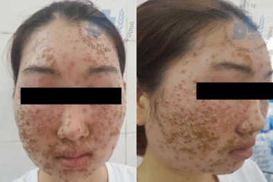 Dùng bột rửa mặt mua trên mạng cô gái 22 tuổi viêm da mặt, chảy dịch vàng