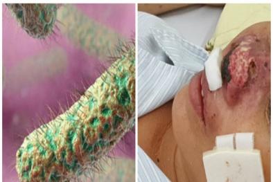 Vi khuẩn 'ăn thịt người' whitmore tái phát lại Việt Nam khiến nhiều người tử vong
