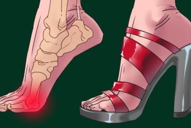 Giày cao gót không chỉ hủy hoại đôi chân, còn ảnh hưởng tới nhiều bộ phận khác trên cơ thể
