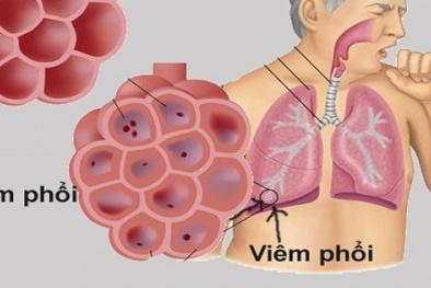 Chủ động phòng chống viêm phổi cấp có nguy cơ xâm nhập vào Việt Nam