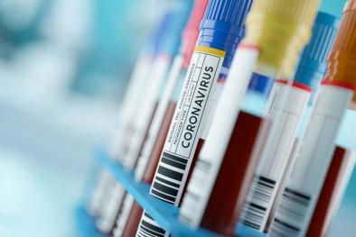 Xét nghiệm máu mới dự đoán chính xác bệnh nhân COVID-19 nào sẽ bị nhiễm trùng nặng