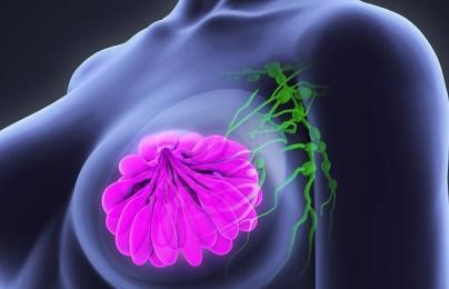 Trí tuệ nhân tọa của google phát hiên ung thư vú 'siêu' hơn bác sĩ