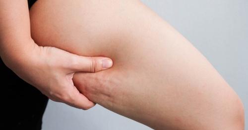 7 loại thực phẩm giúp ngăn ngừa da bị sần vỏ cam